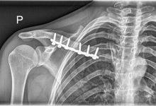 Un nanofenómeno que desencadena el proceso de AUTO reparación ósea